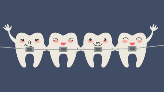 analogy for truss rod - braces